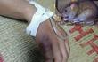 Tưởng vô hại, dịch hạch do bị chuột cắn nguy hiểm thế nào?