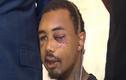 Chàng trai bị cảnh sát bắn mù mắt giữa biểu tình ở Mỹ