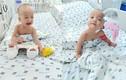 Hai bé song Nhi có thể ngồi dậy chơi đùa sau một tháng mổ tách