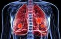 Giật mình 5 kiểu người dễ mắc ung thư phổi nguy hiểm