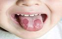 Bài thuốc chữa các bệnh về lưỡi từ cây cỏ quanh nhà