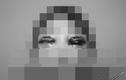 Hot girl mù một mắt, nguy cơ tử vong khi cắt mí tại spa