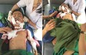 Kinh hoàng bé trai 7 tuổi bị chó cắn tử vong