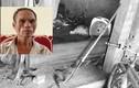 Bé trai bị bác chém lìa tay ở Bắc Giang: Nguyên nhân do bệnh trầm cảm?