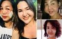 Thảm họa thẩm mỹ khiến cặp bạn thân người Phillippines biến dạng khuôn mặt