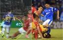 Trước Đỗ Hùng Dũng, V-League từng chứng kiến bao vụ gẫy chân?