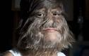 """Diện mạo mới gây kinh ngạc của cô gái từng bị gọi là """"người sói"""""""