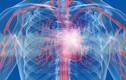 Ngoài phổi, bộ phận cơ thể nào cũng tổn thương nghiêm trọng khi nhiễm COVID-19?