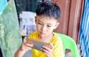 Cậu bé 10 tuổi bất ngờ bị... lác sau khi chơi điện thoại suốt kỳ nghỉ hè