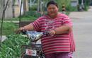 Sửng sốt thiếu nữ 16 tuổi mắc bệnh lạ nặng 165 kg