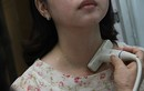 Phụ nữ mãn kinh dễ bị ung thư tuyến giáp?