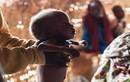 Loạt ảnh gây sốc về những đứa trẻ suy dinh dưỡng ở Nigeria