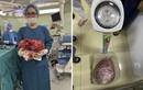 """Quý bà có khối u nặng 10kg, """"ăn"""" hỏng cả thận mà không hề biết"""