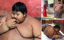 Ảnh cậu bé béo nhất thế giới 10 tuổi nặng 192 kg