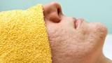 Những nguyên nhân không ngờ khiến bạn sở hữu lỗ chân lông to