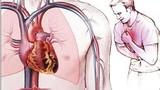 Xơ vữa động mạch gây ra đột quỵ não