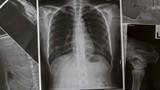 Những dấu hiệu bệnh phổi bạn chớ nên bỏ qua
