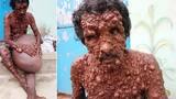 Người đàn ông hóa quỷ, khiến dân làng sợ hãi tránh mặt và sự thật đau lòng