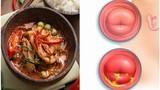 """5 thực phẩm """"nuôi"""" khối u xơ tử cung lớn mỗi ngày, cần tránh xa"""