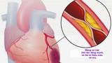 Cụ bà tử vong trên máy bay VNA: Phòng nhồi máu cơ tim thế nào?