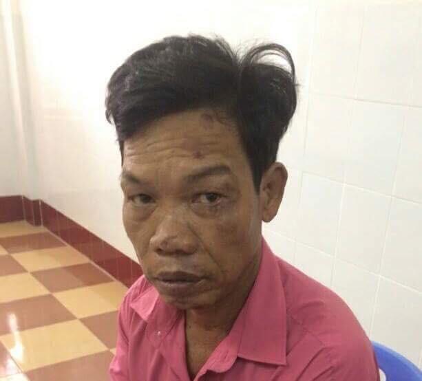 "Binh Dinh: Bi la mang, ""nghich tu"" danh chet cha gia 84 tuoi"