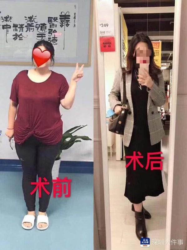 Nang 100kg va khong the mang thai, co gai cat nho da day de giam can-Hinh-2