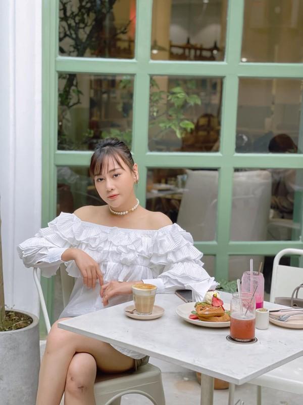 Khoe vai tran, chan thon, Phuong Oanh tu tin voi vet seo dau goi-Hinh-3