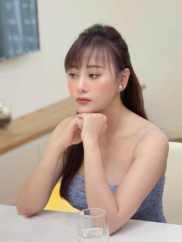 Khoe vai tran, chan thon, Phuong Oanh tu tin voi vet seo dau goi-Hinh-6