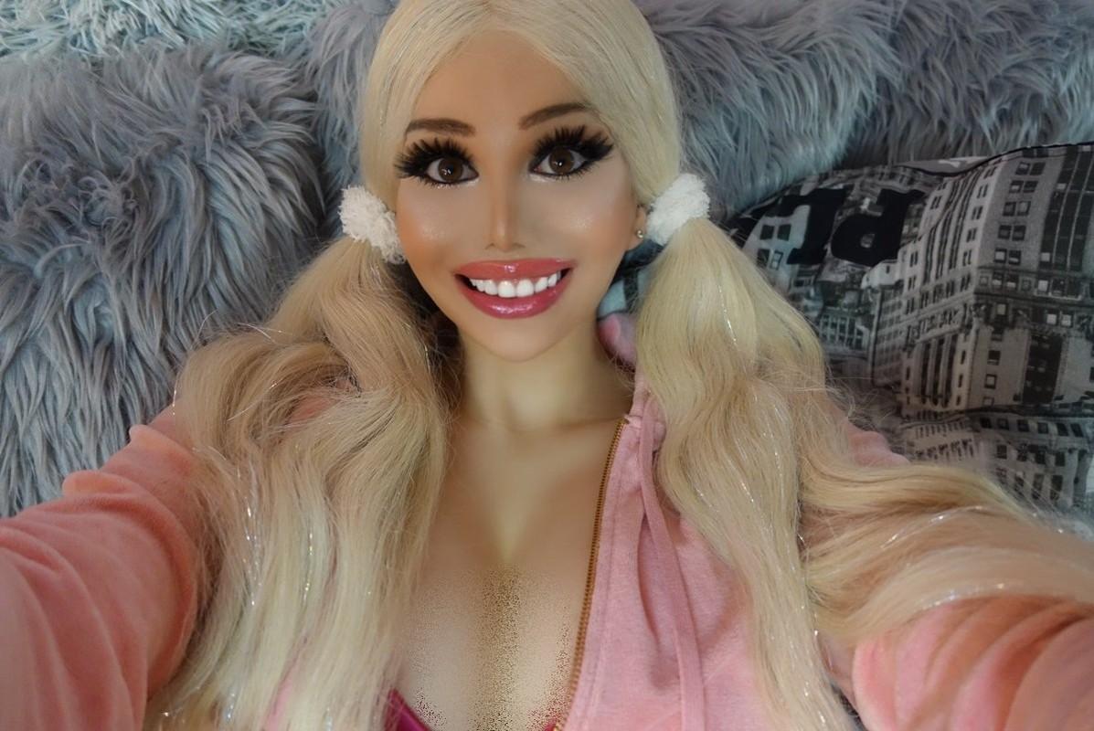 Co gai giong bup be Barbie sau 10 cuoc phau thuat tu 17 tuoi-Hinh-6