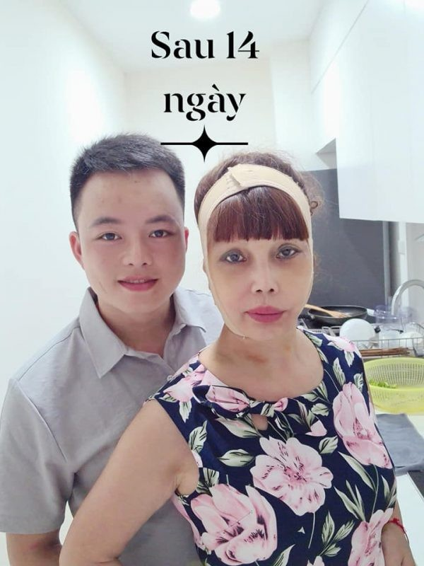 Nhan sac cua co dau 62 tuoi o Cao Bang sau bien chung tham my-Hinh-10
