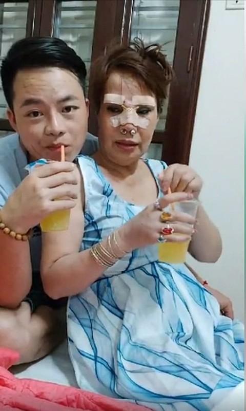 Nhan sac cua co dau 62 tuoi o Cao Bang sau bien chung tham my-Hinh-9