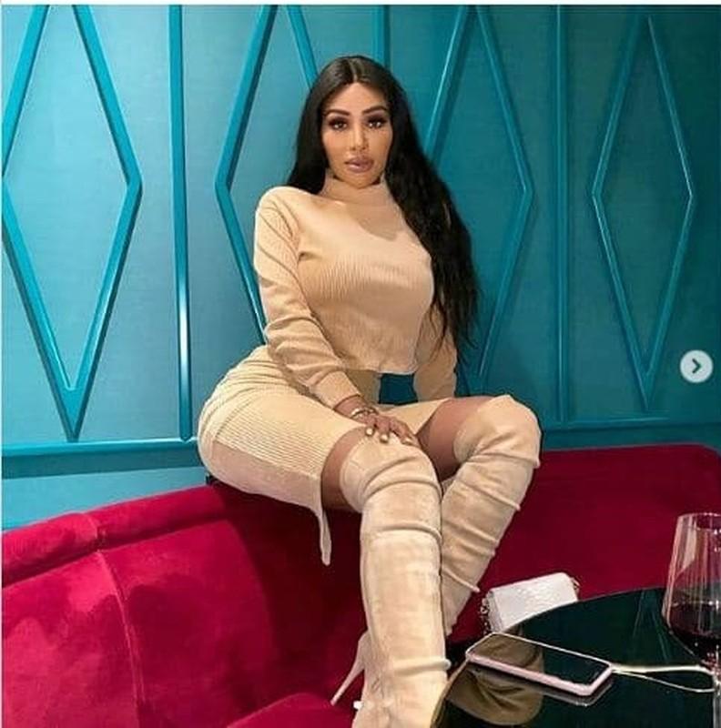 My nhan gay sot vi an mac nong bong y het Kim Kardashian-Hinh-3