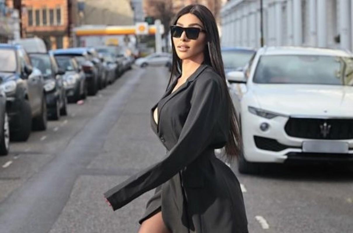 My nhan gay sot vi an mac nong bong y het Kim Kardashian-Hinh-5