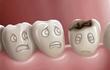 Giật mình thực phẩm khiến trẻ sâu răng khủng khiếp hơn kẹo ngọt