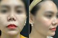 Mũi gái xinh biến dạng vì thẩm mỹ hỏng đến 8 lần