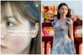 Lộ ảnh đầy mụn, tình cũ Quang Hải khiến netizen ngã ngửa