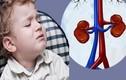 Bệnh thận ở trẻ em do di truyền?