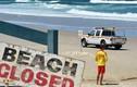 Tắm biển, du khách Nhật bị cá mập cắn đứt hai chân