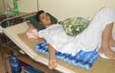 Cứu sống bệnh nhân vỡ thực quản do nổ khí gas