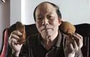 50 năm chữa trĩ bằng cây cao su