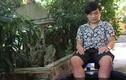 Chàng trai 19 năm có đôi chân nóng như than giờ ra sao?