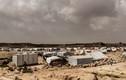 Nhói lòng cuộc sống trong trại tị nạn ở Yemen