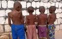 Phẫn nộ vụ 15 đứa trẻ bị xiềng xích, tra tấn trong trường học