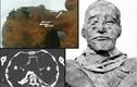 Hé lộ vụ ám sát dã man vua pharaoh Ai Cập