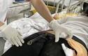 Cứu cô gái bị chân chống xe đâm vào mông