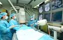 Phương pháp trị di căn gan từ ung thư đại trực tràng