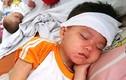 9 khuyến cáo nên đọc gấp để phòng chống bệnh sởi