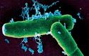 Rùng mình xem vi khuẩn bệnh Than tấn công cơ thể người
