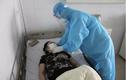 Bác gái bệnh nhân COVID-19 thứ 17 sốt trở lại, rối loạn đông máu cao