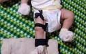 Lời khai bất ngờ của người cha bị tố đánh con ruột 2 tháng tuổi gãy chân